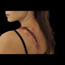 prothese latex cicatrice sanguinolente recousue
